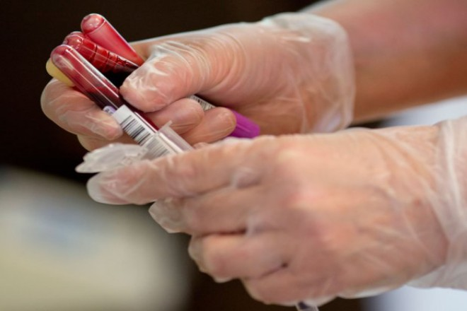 FDA approves blood test that gauges heart attack risks