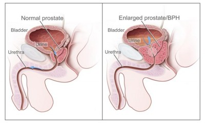 Early Detection of Prostate cancer now possible with a new drug