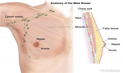 Male Breast Cancer Is Different from female