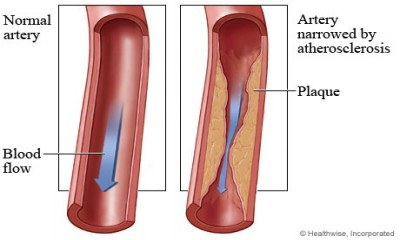 Atherosclerosis: A warning for cognitive impairment risk