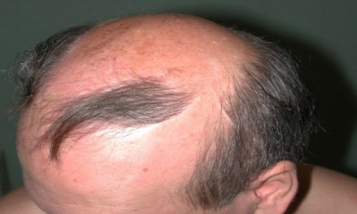A new hope for Baldness cures?